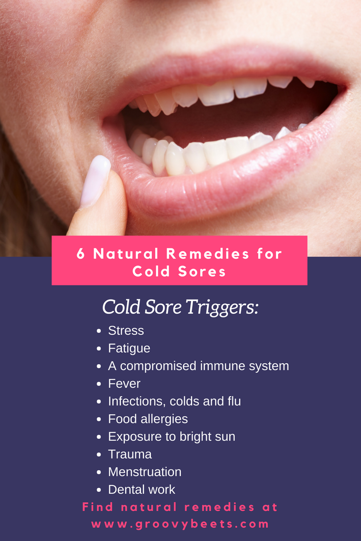 Natural Remedies for Cold Sores | GroovyBeets.com